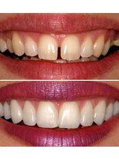 Veneers - Riverforest Dental Clinic