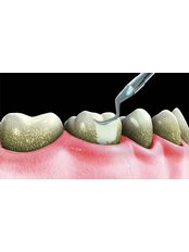 Teeth Cleaning - Riverforest Dental Clinic