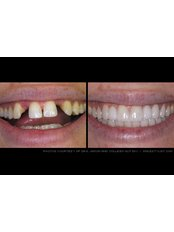Dental Bridges - Riverforest Dental Clinic