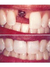 Dental Implants - Riverforest Dental Clinic