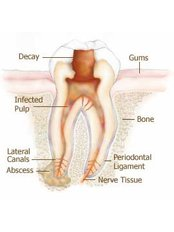 Root canals - Riverforest Dental Clinic