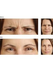 Treatment for Lines and Wrinkles - Callan Dental Practice