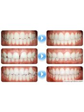 Adult Metal Braces - cost of one set - Bio Force Medical & Dental Clinic