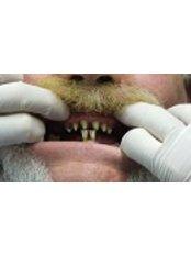 Porcelain Bridge - Bio Force Medical & Dental Clinic