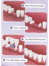 Dental Crowns - Ratoath Dental Centre
