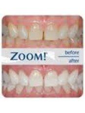 Teeth Whitening - Richard Power Dolphin Dental Surgery