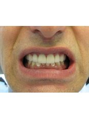 Porcelain Crown - Bray Dental