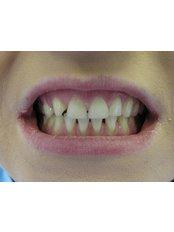 Veneers - Bray Dental