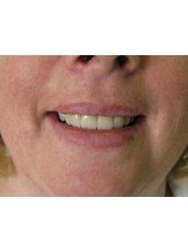 Dental Crowns - Bray Dental