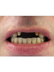 Dental Bridges - Bray Dental