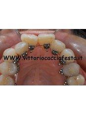 Braces - Cacciafesta Vittorio
