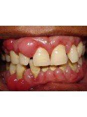 Antibiotic and Antifungal Treatment - American Dental Studios, Rome