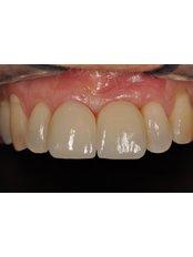 CAD/CAM Dental Restorations - Dr.Fabio Maltese