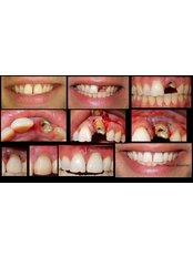 Dental Crowns - Alsalem Dental Clinics