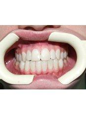 Cosmetic Dentist Consultation - Dr.Amjad Qasem, Private Office