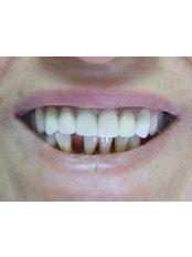 Dental Bridges - Dr.Amjad Qasem, Private Office