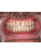 Dental Implants - Dr.Amjad Qasem, Private Office
