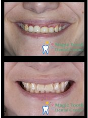 Dental Implants - Magic Tooth Dental Center
