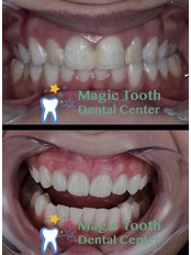 Dental Zirconia Crowns - Magic Tooth Dental Center