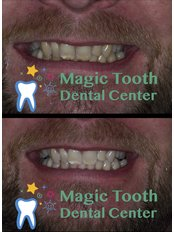 Zoom! Teeth Whitening - Magic Tooth Dental Center