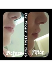 Lip Augmentation - Nour Abu Rub Dental Clinic