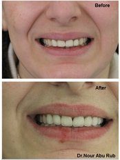 Porcelain Crown - Nour Abu Rub Dental Clinic