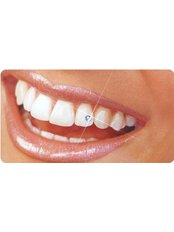Tooth Jewellery - Privat Dental Clinic ComfortDent