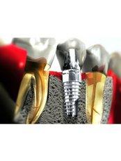 Dental Implants - Privat Dental Clinic ComfortDent