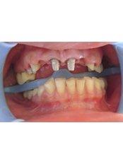 Mini Implants - Ferrari Dental Clinic Beirut Lebanon