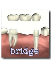 Dental Bridges - Ferrari Dental Clinic Beirut Lebanon