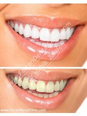 Veneers - Ferrari Dental Clinic Beirut Lebanon