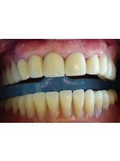 Removable Partial Dentures - Ferrari Dental Clinic Beirut Lebanon