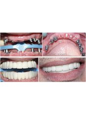 Metal-Free Implants - Ferrari Dental Clinic Beirut Lebanon