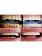 Cerinate™ One-Hour Veneers - Ferrari Dental Clinic Beirut Lebanon
