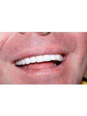 Zirconia Crown - Ferrari Dental Clinic Beirut Lebanon