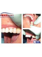 Single Implant - Ferrari Dental Clinic Beirut Lebanon