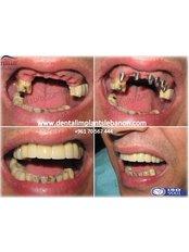 Dental Implants - Ferrari Dental Clinic Beirut Lebanon