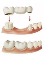 Porcelain Bridge - Ferrari Dental Clinic Beirut Lebanon