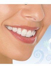 Adult Braces - Ferrari Dental Clinic Beirut Lebanon