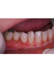 Soft Tissue Grafts - Ferrari Dental Clinic Beirut Lebanon