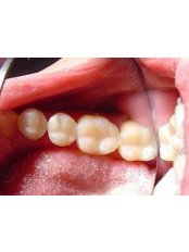 CAD/CAM Dental Restorations - Ferrari Dental Clinic Beirut Lebanon