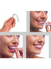 Clear Braces - Ferrari Dental Clinic Beirut Lebanon