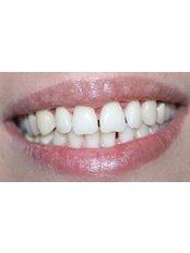 Gum Contouring and Reshaping - Ferrari Dental Clinic Beirut Lebanon