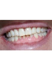 Cosmetic Dentist Consultation - Ferrari Dental Clinic Beirut Lebanon