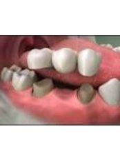 3-Unit Bridge - Ferrari Dental Clinic Beirut Lebanon