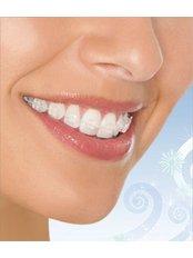Braces - Ferrari Dental Clinic Beirut Lebanon