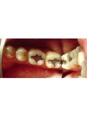 White Filling - Ferrari Dental Clinic Beirut Lebanon