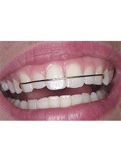 Orthodontic Retainer - Ferrari Dental Clinic Beirut Lebanon