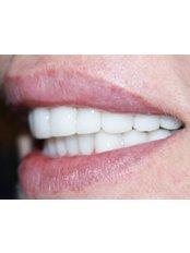 Lumineers™ - Ferrari Dental Clinic Beirut Lebanon
