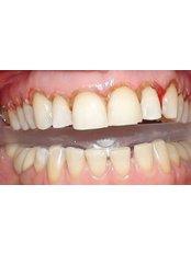 Gingival Flap Surgery - Ferrari Dental Clinic Beirut Lebanon